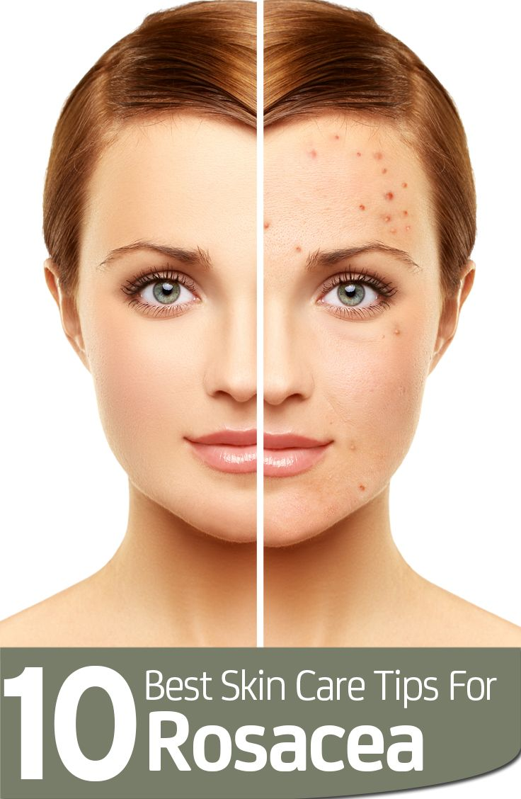 Join Treatment information facial rosacea