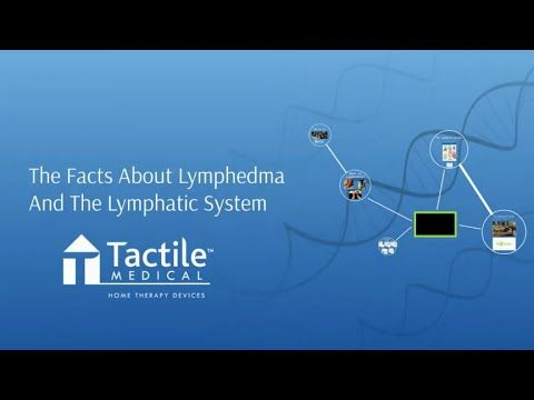 The Facts About Lymphedema and the Lymphatic System - Tactile Medical - LE&RN Expo - YouTube