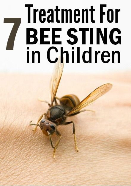 7 Effective Treatments To Cure Bee Sting In Children: Bees leave behind their stinger while stinging. The venom is rich in proteins which can affect your child's immune system causing swelling and pain.You must treat bee sting in your children as early as possible. Here is what you can do.