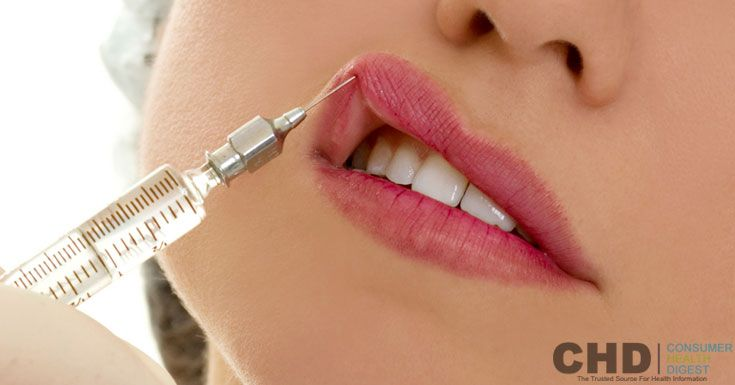 Lip Augmentation is the procedure to make lips fuller, plumper and decrease all wrinkles around the lip area. Read comprehensive information about Lip Augmentation, its procedure, risk, side effects and more.