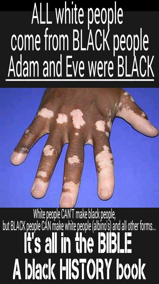 THIS IS RENAMED 'VITILIGO' TO MISDIRECT INTENTIONALLY -> Adam and Eve were BLACK according to the bible. So is CHRIST black according to the bible and so are the REAL Hebrew Israelites of the bible, black. NOT the fake white jews who stole the Holy land, revelation 2:9, 3:9 ... Satan fools the whole World with his White wash Lies. Remember the earth was given into the hands of the wicked... Research IT all for yourself and see.... #HebrewIsraelites spreading TRUTH #ISRAELisBLACK…
