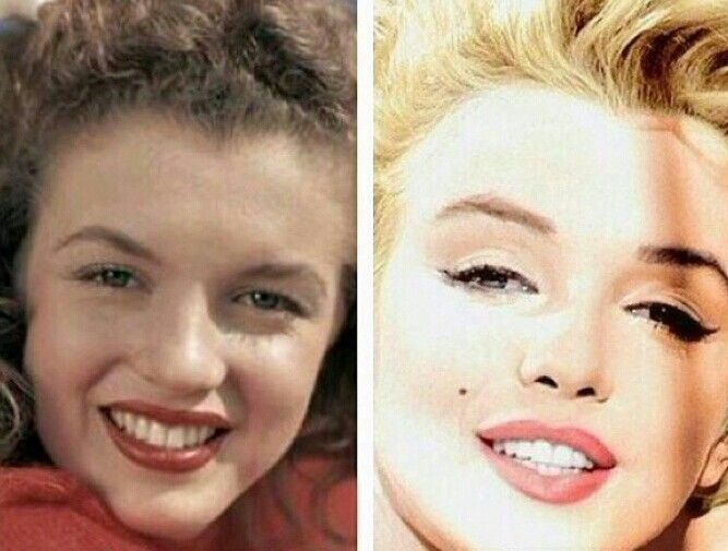 Marilyn before and after cosmetic surgery | CELEBRITY ...