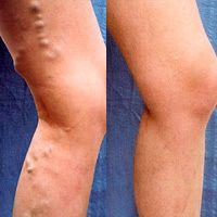 1 ayda genişlemiş damarlardan kurtulun ve güzel bacaklarınızı plajda sergileyin.