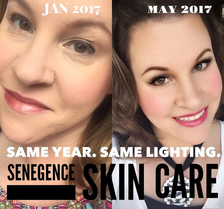 Do I even need a caption for this?? I cannot get over this picture. 4 months ago my skin was dull, wrinkly, and puffy. Today it is smooth & GLOWING! This company is so much more than long lasting lip color... I love SeneGence���� #skincare #antiaging #senegence #antiwrinkle #exfoliate #youthfulskin #bblogger #bbloggers #esthetician #cosmetics #cosmetology #beauty #skin #bridalmakeup #becauseofsenegence #lovely #letsgetglamtx #watchmeorjoinme #ladyboss #girlboss #notjustanotherliquidlipstick…