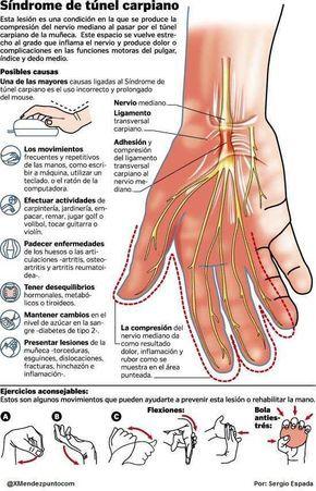 ¡Cuida tu salud! Recuerda que algunos ejercicios pueden prevenir el síndrome del túnel carpiano