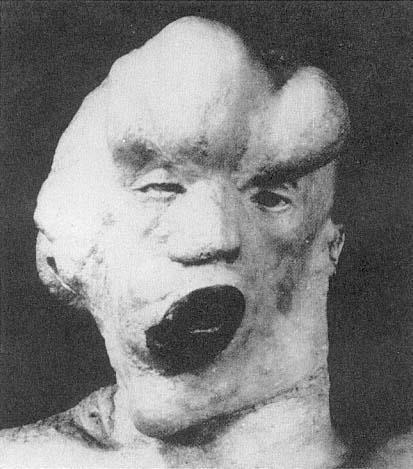 Postmortem cast of the head and neck of John Merrick.