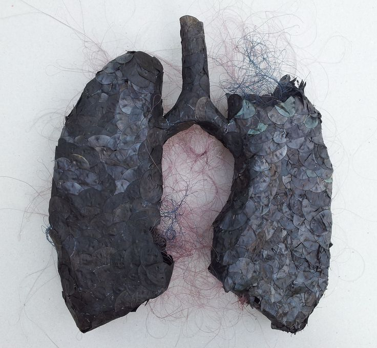 Black anatomy Lungs In memory of my father, by Valentina Ștefănescu