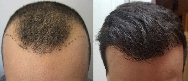 If you want a certain success after the hair transplant surgery, you may talk to a Hair Doctor in Ahmedabad by visiting the Avenues clinic. In the clinic, there is not the chance of failure or risks since the experts of the clinics are well-trained and experienced and they know what the failure of the surgery means.