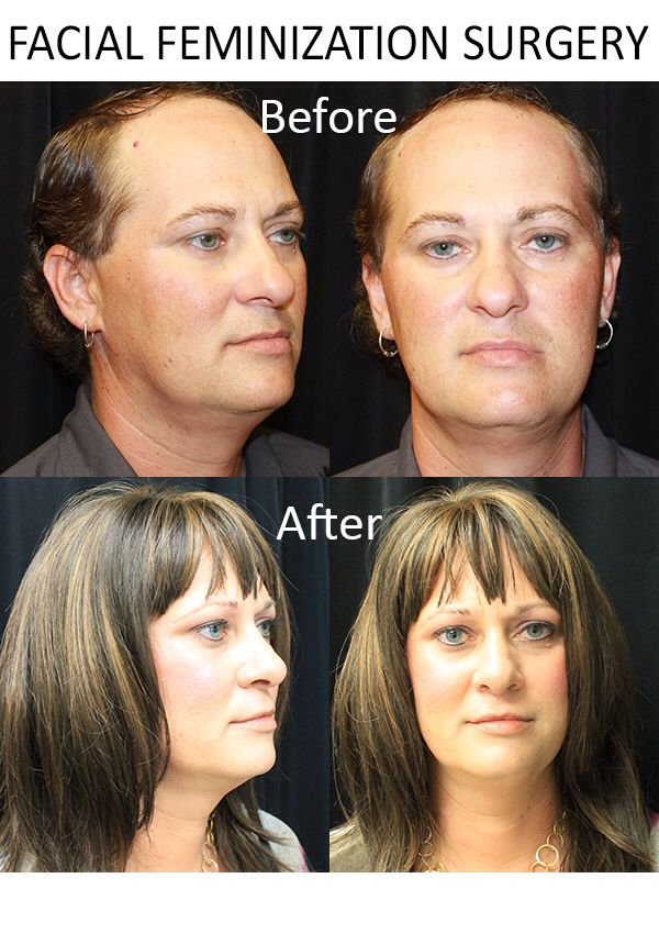 Facial feminization surgery costs