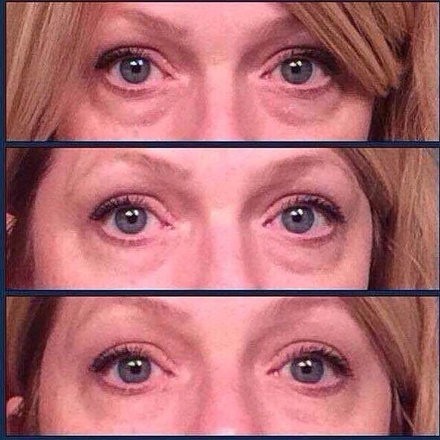 #BeforeAndAfter - Getting rid of those #UnderEye Bags and #DarkCircles has never been easier! #InstantlyAgeless #Jeunesse #AntiWrinkles #AntiAging #Botox #Flawless #SkinCare