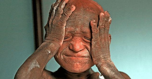 http://formulalubvi.com/zhizn/bolezn-prevrashhayushhaya-v-kamen-tragicheskaya-istoriya-11-letnego-malchika/  Боже... чего только нет на этом свете... бедный мальчик