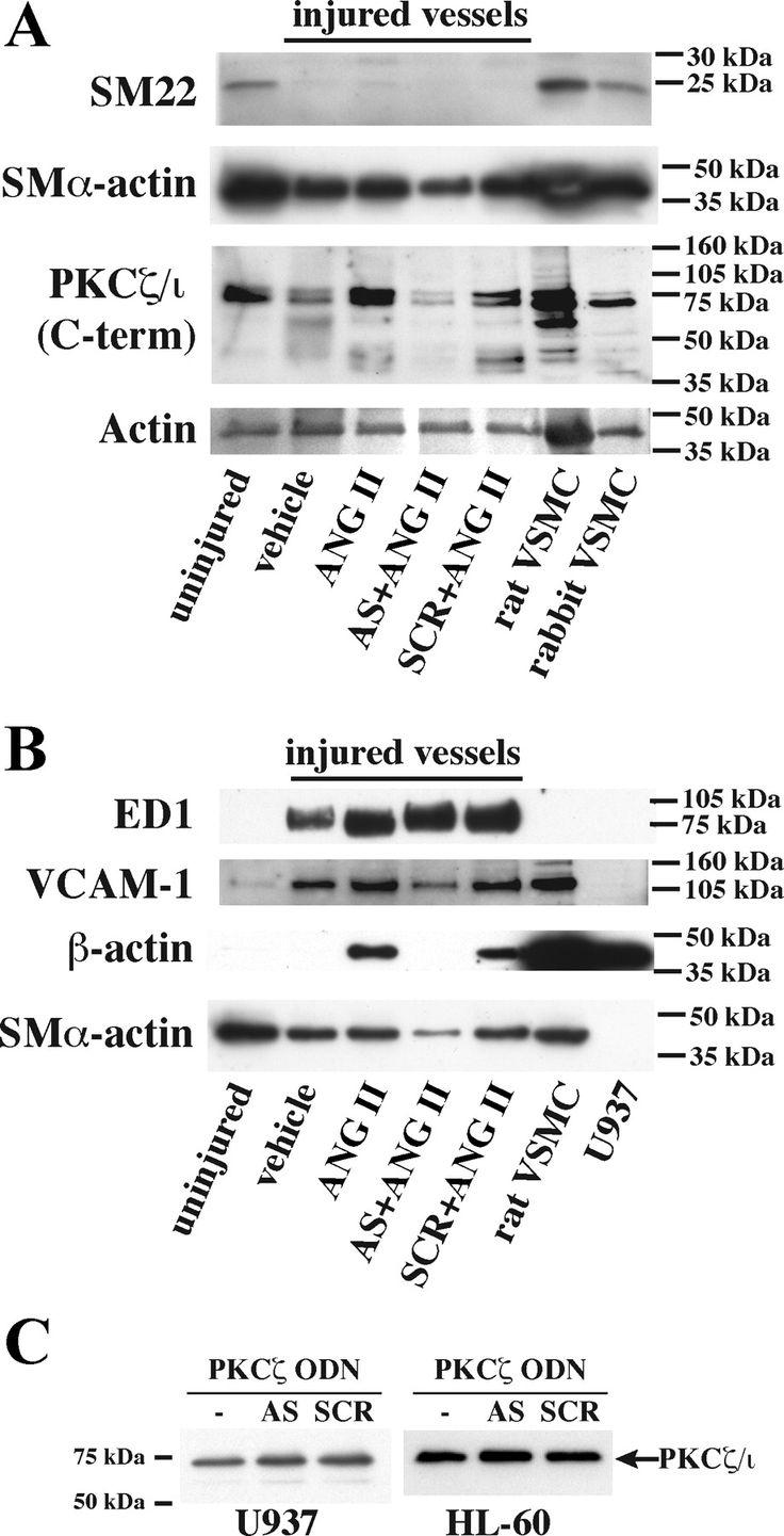 Image result for vascular marker western blot