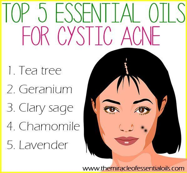 Use any of these 5 essential oils for cystic acne to get those cysts under control once and for all!