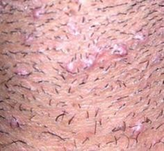 A treatment to help heal ingrown hairs and tips to prevent ingrown hair and razor bumps.