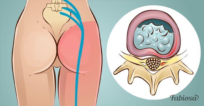 Treat_Sciatica_And_Lumbar_Pain