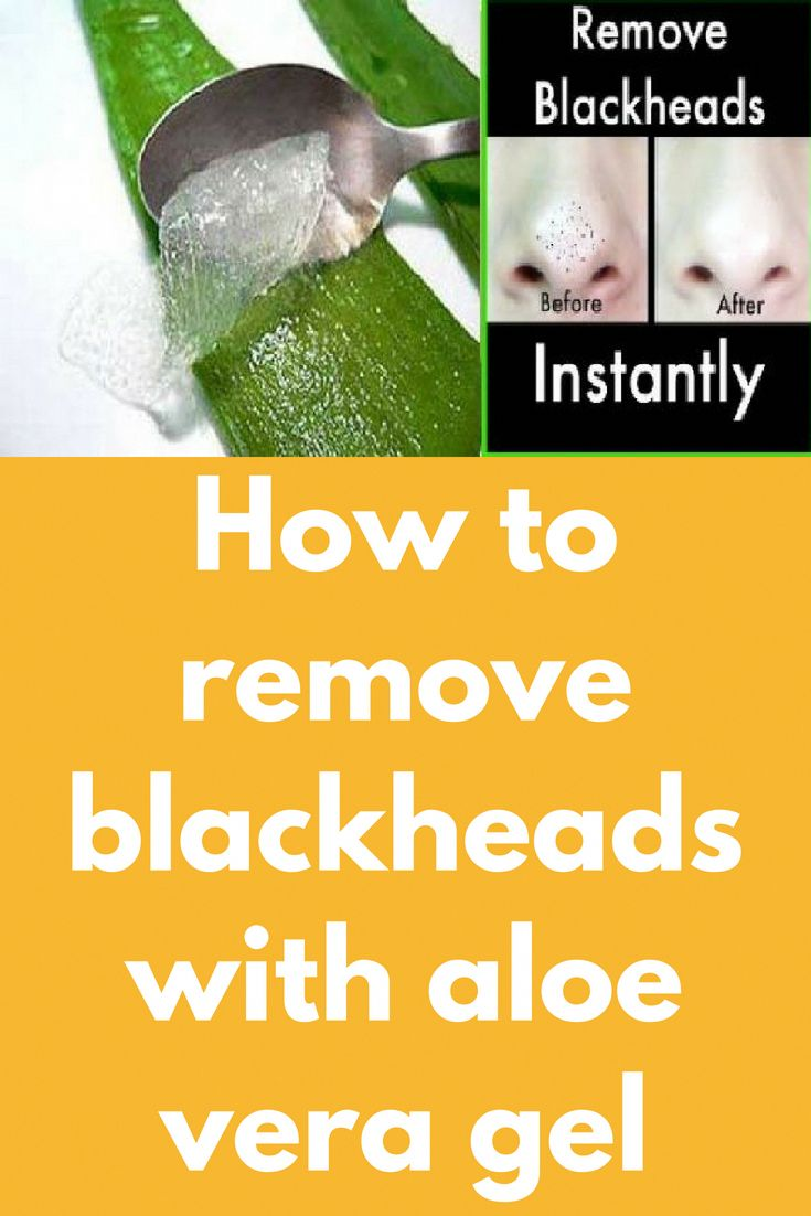 How to remove blackheads with aloe vera gel The ma…