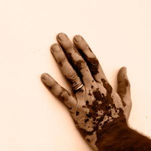 This man's hand is affected by vitiligo, or depigmentation of skin. It's caused by the body's failure to produce melanin, which gives skin its color.