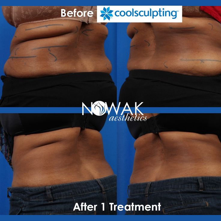 san diego dermatologists coolsculpting - 736×736
