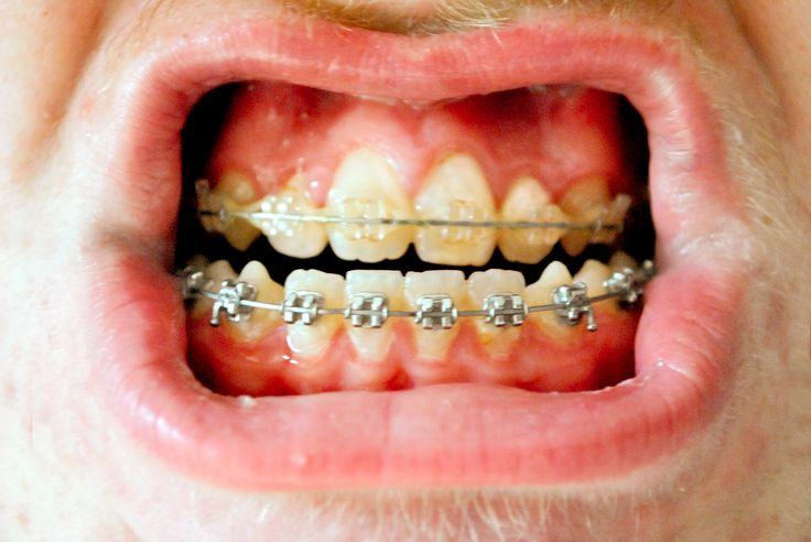 Eat food with new or tightened braces dental braces and