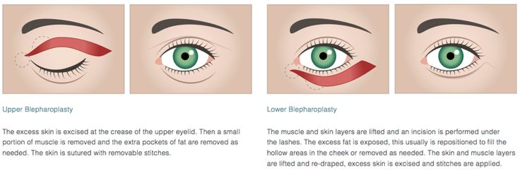 Eye Lift Surgery - Brow Lifts & Eyelid Surgeries in Stockton   New Body MD