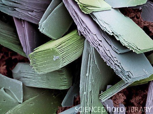 Bloedstolsel kristallen Het lichaam is echt geweldig.  Kunnen vormen stolsels via de kristallen om het bloeden te stoppen.  Wow.  Bloedstolsel kristallen.  Gekleurde scanning elektronenmicroscoop (SEM) van kristallen van albumine van een bloedstolsel.  Wanneer de huid wordt gesneden, worden kleine bloedvaten gescheurd, vrijgeven bloed.  Sommige eiwitten in het bloedplasma (zoals albumine) harden in de lucht kristallen (roze) over de wond te vormen.  Credit: STEVE GSCHMEISSNER / ...