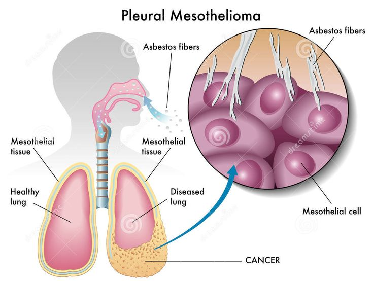 Pleural mesothelioma is the most common form of mesothelioma by far and accounts for 75% of all cases of mesothelioma. Pleural mesothelioma affects the respiratory areas of the body like the lungs.   #Asbestos #Pleural Mesothelioma #risk for asbestos #symptoms #Treatments #Treatments for pleural mesothelioma