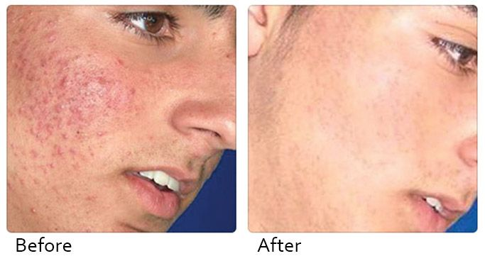 Acne trouble can really effect your appearance and self confidence. At #DNAhealthcorp, we understand and offer some amazing treatments to fight acne and clear your skin. With the help of our outstanding beauty staff, we will customize an acne treatment just for you!!!  See more at: http://www.dnahealthcorp.com/pages/acne-laser