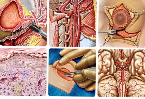 ilustração Médica www.tonan.com.br