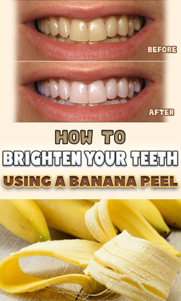 A perfect look is something that every woman wishes for. But it is definitely completed by a beautiful smile, which is quite difficult to get, no matter how many procedures or products you use. The most common way to bleach your teeth is a professional one, but it costs a fortune and it not always …