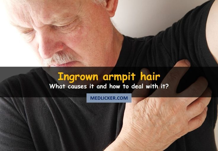 What to do if you have an ingrown underarm hair? What causes your armpit hairs grow down and how to prevent it? How to tell the difference between an ingrown hair and a swollen lymph node? Read this article to find out!