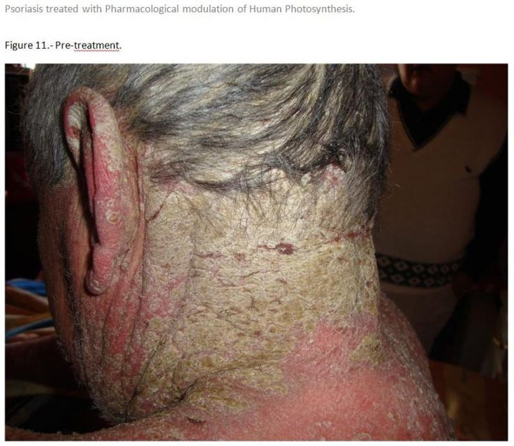 17 Best images about Scalp Psoriasis on Pinterest - Dry itchy scalp ...