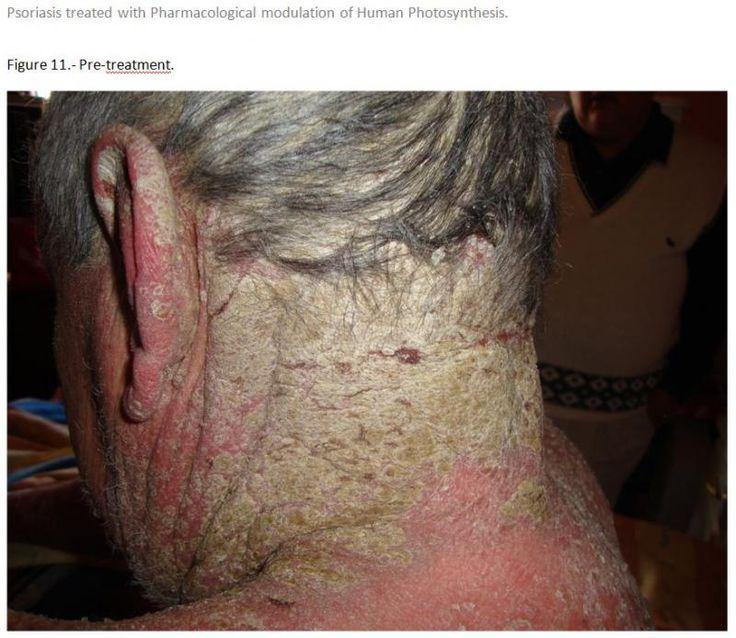 Scalp Psoriasis Natural Treatment Scalp Psoriasis