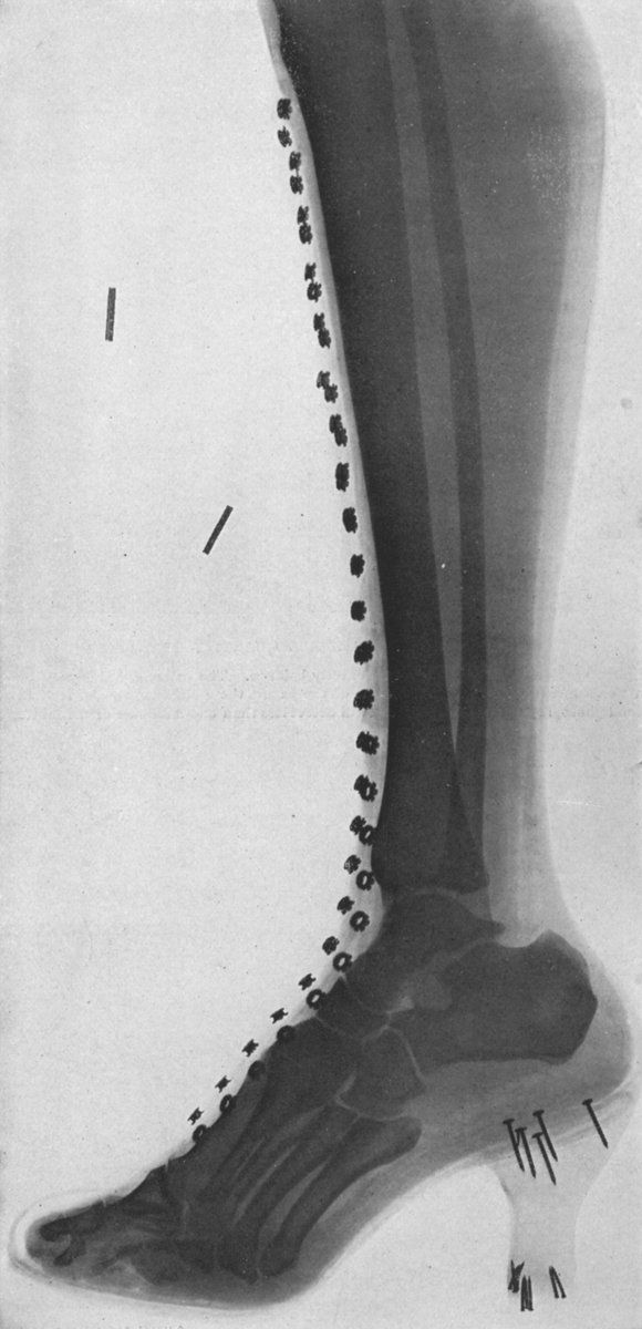 Science - Medical - Photo - X-ray High Heels