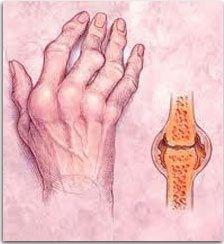 Ревматоидный артрит: современное состояние проблемы