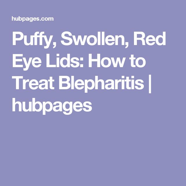 Puffy, Swollen, Red Eye Lids: How to Treat Blepharitis | hubpages