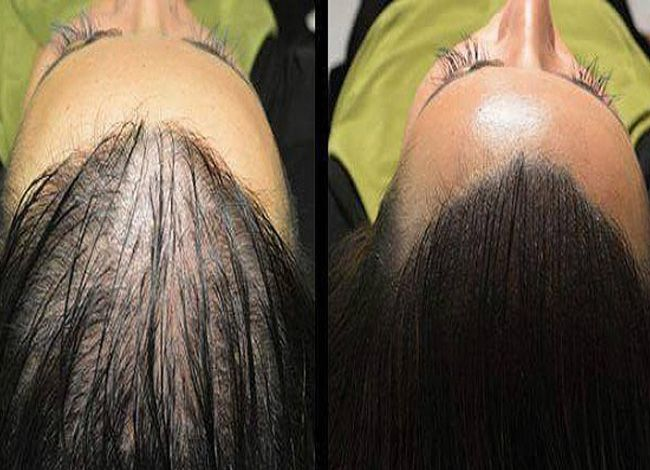 Выпадение волос и облысение. Когда мы слышим эту проблему, чаще всего первое, что приходит на ум, причина тому – старение. Но на самом деле это не совсем единственная...