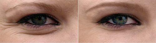 Eliminación de arrugas en Photoshop y cursos de fotografia a distancia.