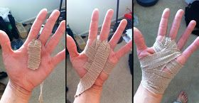 Blister Treatment and Prevention