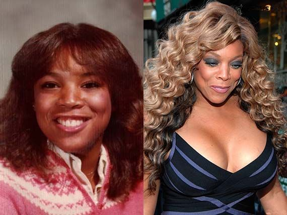 Wendy Williams Plastic Surgery Breasts Before And After