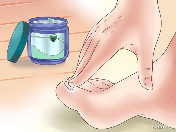 Heb je last van schimmel/kalknagels? Doe er wat Vicks op. Na een paar dagen zie je dat je nagels donkerder worden, dat betekent dat het spul aan het werk is. Na 2 weken tijd is de schimmelnagel verleden tijd.