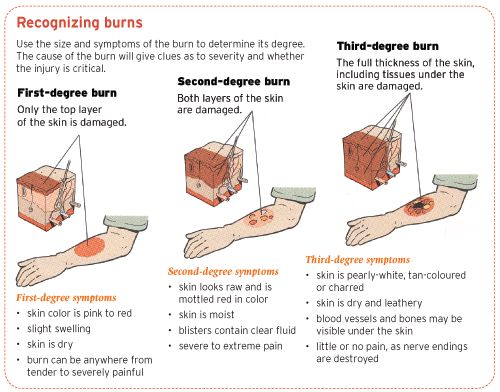 If you have a severe burn that has limited your mobility , you may have to undergo debriding, which is the removal of dead tissue, prior to reconstructive surgery.