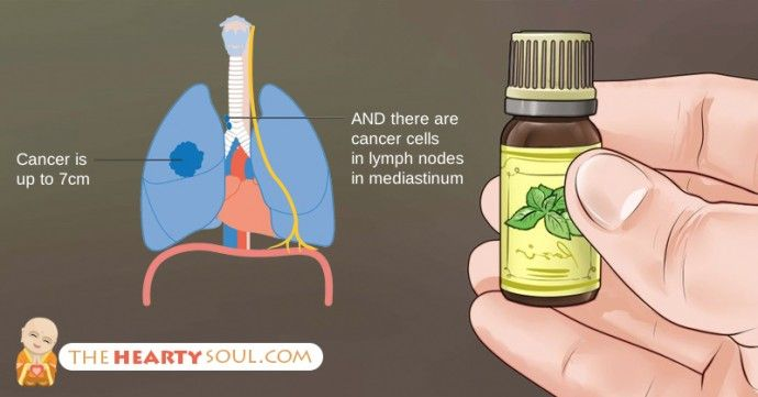 The Truth About Cancer and Essential Oils: What NO Oncologist Will Tell You