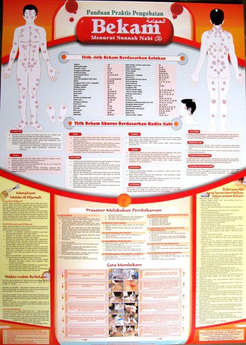 Seri Ensiklopedia Islam.  Panduan Praktis Pengobatan Bekam.