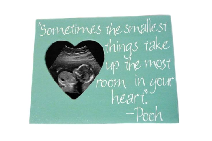 ultrasound with quotes | for women with my sweet bf with the that loves a mother sorry i came ...