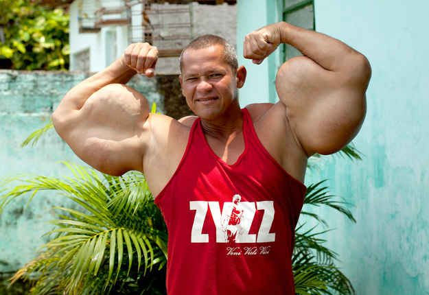 The 43-year-old has the biggest biceps in Brazil. | Meet The Man With 29-Inch Biceps no one should deform themselves like that. its ugly, maybe freak show at best.