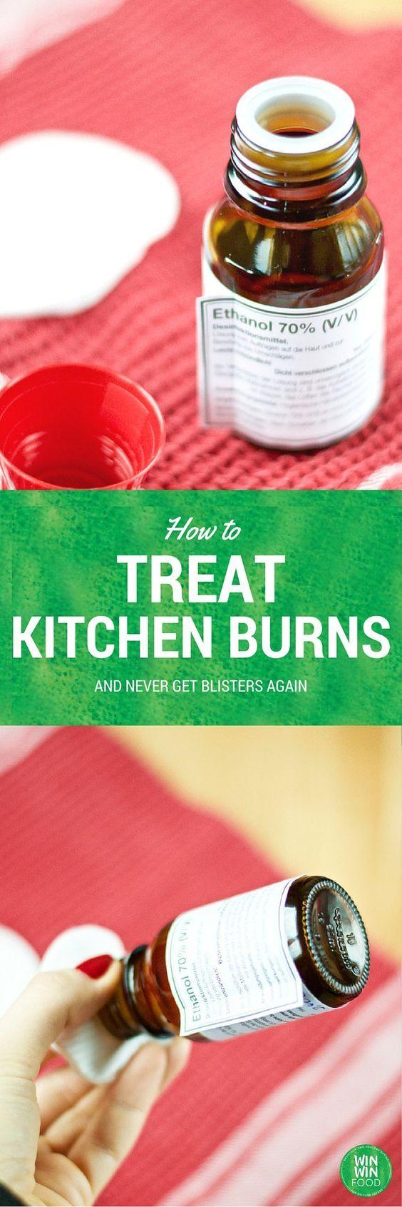 How to Treat Kitchen Burns | WIN-WINFOOD.com No more blisters!!! :) #kitchenhack