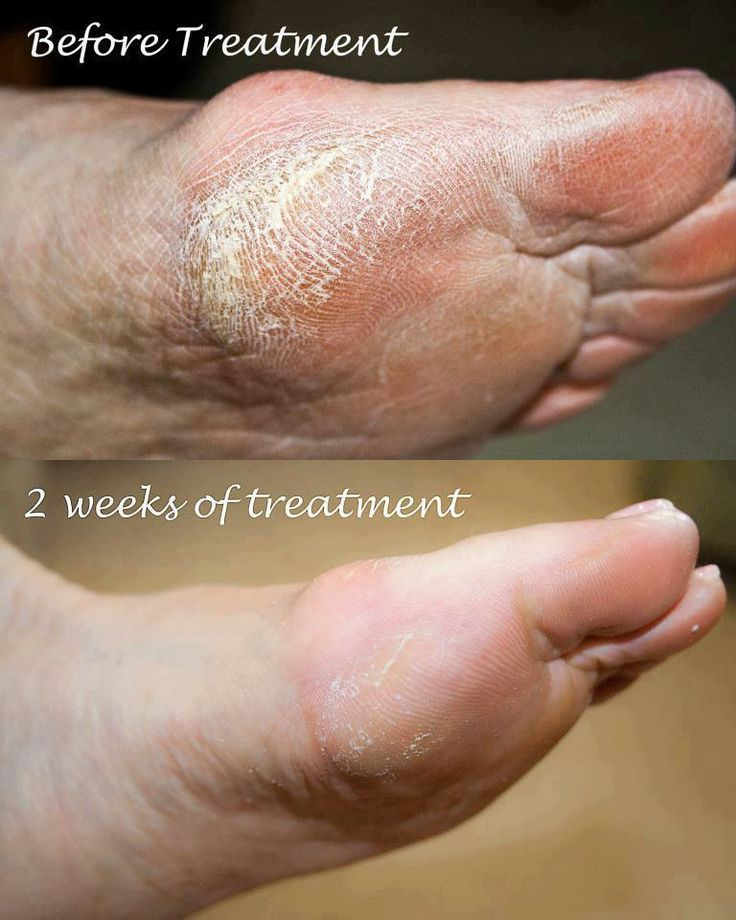 Dry Cracked Feet?  Try Skincerity www.renumyskin.mynucerity.biz