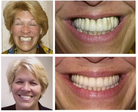 Implant Dentist In Nj Before Amp After Patient Photos