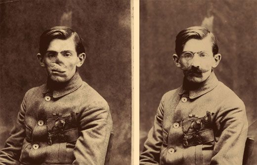 WWI Soldier with Porcelain Facemask