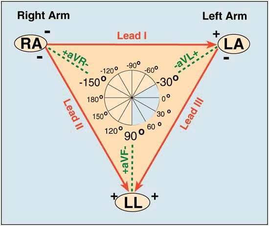 Behold: Einthoven's Triangle! || Each of the 6 frontal plane leads has a negative and positive orientation (as indicated by the '+' and '-' signs). It is important to recognize that Lead I (and to a lesser extent Leads aVR and aVL) are right to left in orientation. Also, Lead aVF (and to a lesser extent Leads II and III) are superior to inferior in orientation. The diagram below further illustrates the frontal plane hookup.